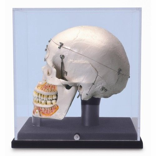 Deluxe Human Dental Skull, , with display globe A27/9